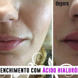 Ácido Hialurónico - Antes e depois