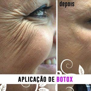 Botox - Antes e depois